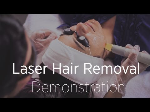 Laser Hair Removal Demonstration