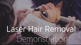 Laser Hair Removal Demonstration - What To Expect During a Treatment