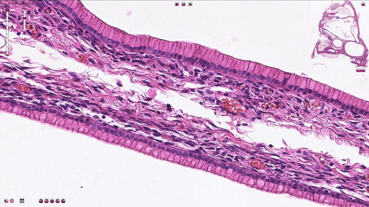 Îndepărtați papilomul criopharm. Cryopharma din papiloame Preț