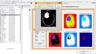 Brain Tumor Detection Using Image Processing Matlab Code