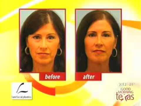 Good Morning Texas On Incisionless Facial Rejuvenation, Fat Vs. Fillers