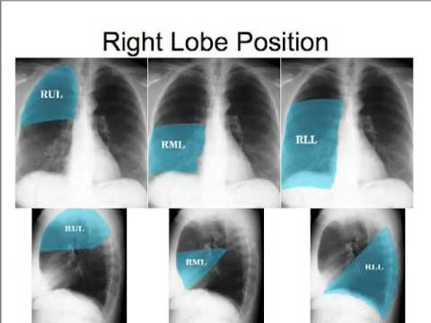 CXR - How to read the chest x ray - Part I: Concepts and Quality