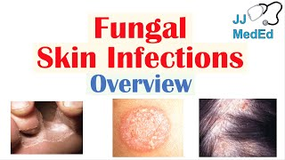 Overview of Fungal Skin Infections | Tinea Infections