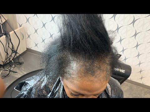 How to fix damaged hair| Hair not growing in hair line| Hair loss entire front hair line