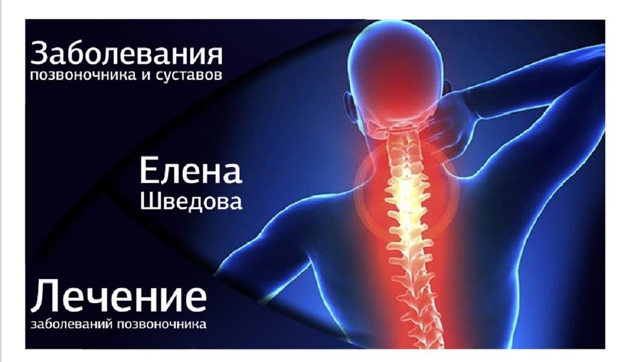 лечение суставов мазями таблетки