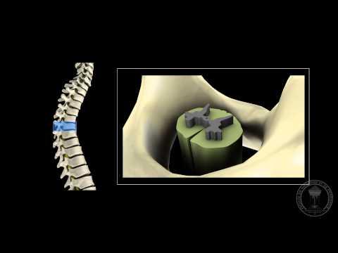 Neuroanatomy - The Spinal Cord