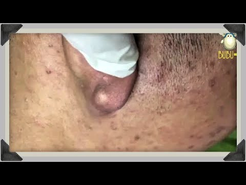 Repeat BIG ACNE BEHIND EAR - Blackheads, Whiteheads And