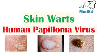 Overview of Skin Warts (Verrucae) | What Causes Them? Who Gets Them? | Subtypes and Treatment