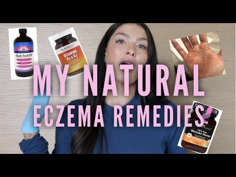 Dry, itchy & fed up? NATURAL ECZEMA REMEDIES!! No cortisone required