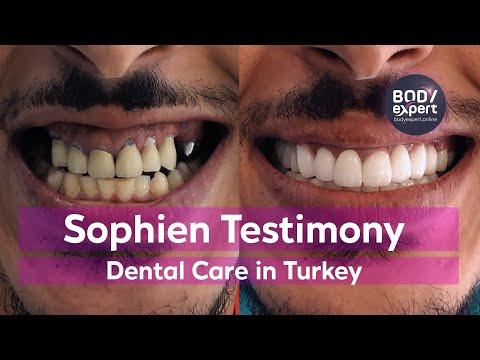 Dental Crowns and Dental Implants Testimony in Turkey [Sophien]