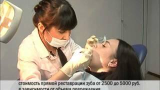 видео Прямой и непрямой метод реставрации зубов