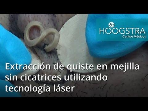 Extracción de quiste en mejilla derecha sin cicatrices utilizando tecnología láser (17030)