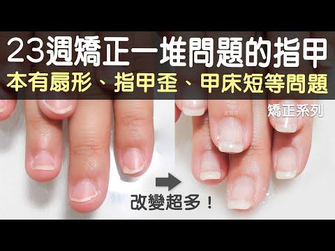 這真的是同一個人的手嗎?23週的矯正 原本有扇形+指甲歪+甲床短等問題