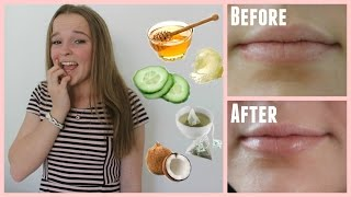Easy Ways Cure Chapped Lips Minutes