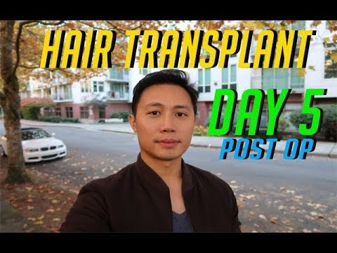 FUE Hair Transplant Surgery Post Op Day 5 Progress Result Video