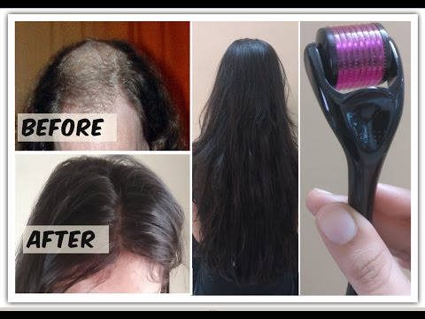 Regrow Hair From Roots With Dermaroller Cures Baldness