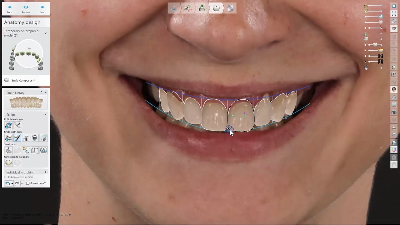 3Shape Smile Design