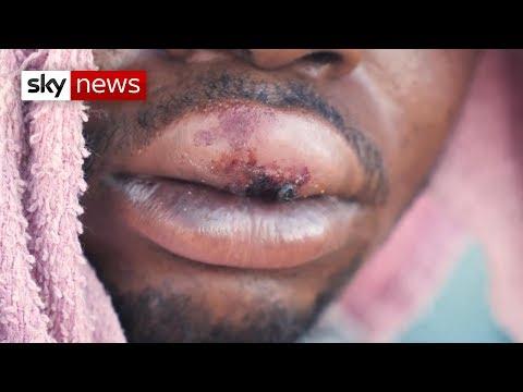 Zimbabwe civilians 'traumatised' by unjustified attacks