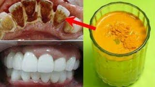 2 मीनट- गंदे पीले दांतो को सफ़ेद और चमकदार बनाने का कारगर नुस्खा // Teeth Whitening at Home