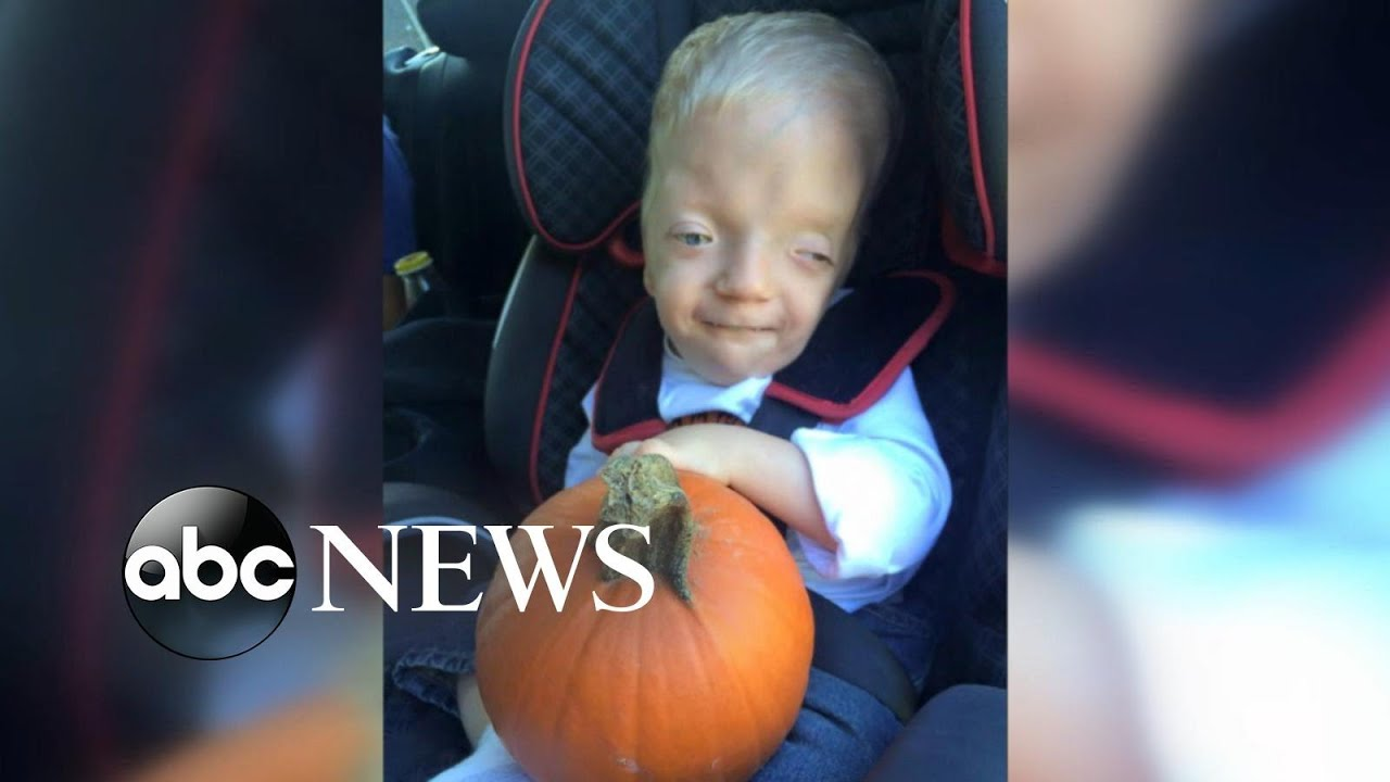 Mom Fights Back Against Cruel Meme Of Terminally Ill Toddler Youtube