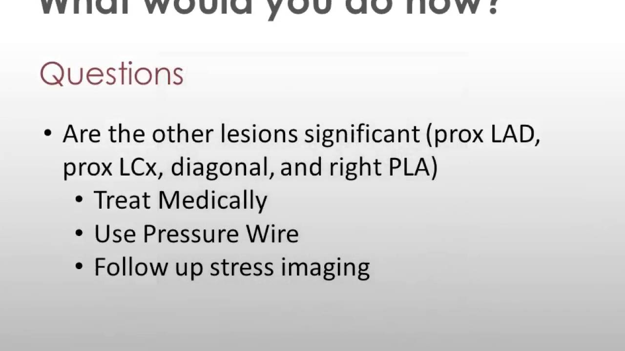 Using pressure wire to test non-culprit lesions during ACS - YouTube