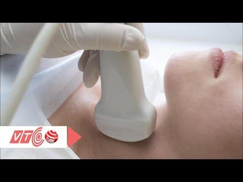 Triệu chứng viêm tuyến giáp không thể bỏ qua | VTC