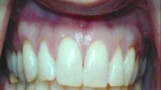 Inflammation in Gums Bacteria is Earliest Stage of Gingivitis & Gum Disease