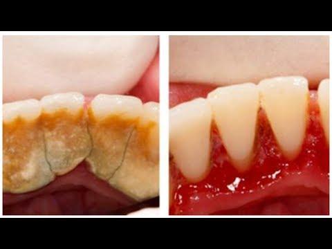 Избавиться от зубного камня в домашних условиях