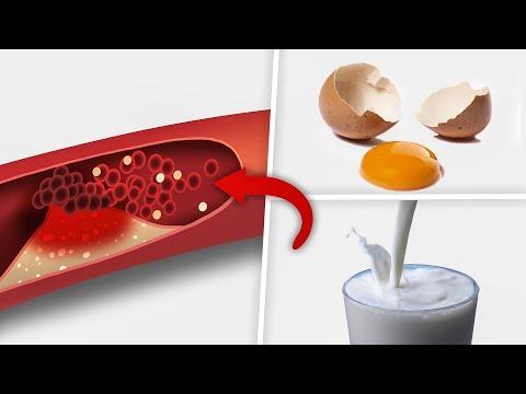 high-cholesterol-foods---5--high-cholesterol-foods-you-must-avoid