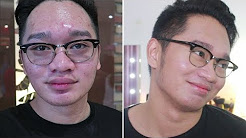 hqdefault - What Is Acne In Tagalog