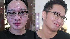 hqdefault - Best Kojic Soap For Pimples