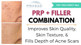 Acne Scar Treatment - Combining of PRP for Improved Skin Texture, and Filler for Elevation