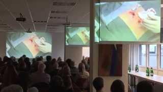 LIVE-OP: KYPHOPLASTIE - St. Vincenz Krankenhaus Limburg