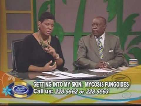 Getting into my skin - Mycosis Fungoides