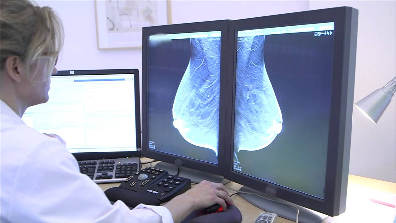 Download New method detects more breast cancer in screening