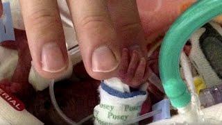 I medici trattengono il fiato quando vedono il bimbo per la prima volta.