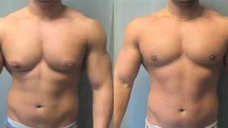 Jinekomasti - Beslenme hataları - Hormonlar - Vücut Geliştirme Shredded Brothers