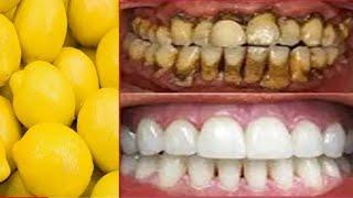волшебное Средство Отбеливания Зубов, Получить Отбелить Зубы дома в 2 минуты Tekin Maslahat