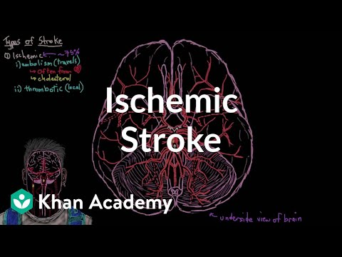 Ischemic stroke | Circulatory System and Disease | NCLEX-RN | Khan Academy