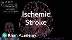 Ischemic stroke   Circulatory System and Disease   NCLEX-RN   Khan Academy