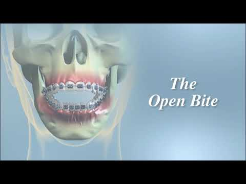 Having Orthognathic Surgery | Oral Surgeon Miami Beach