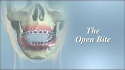 Having Orthognathic Surgery   Oral Surgeon Miami Beach