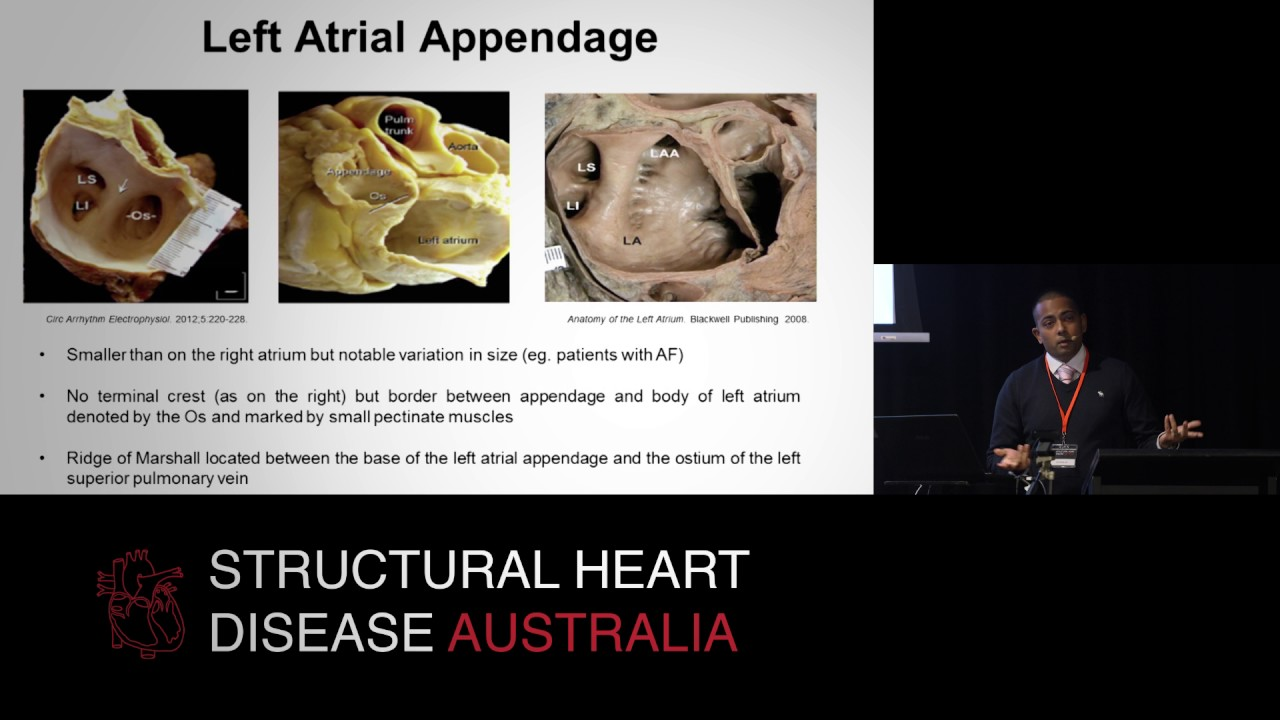 Left Atrial Anatomy All The Nooks Crannies Dr Sean Lal Youtube