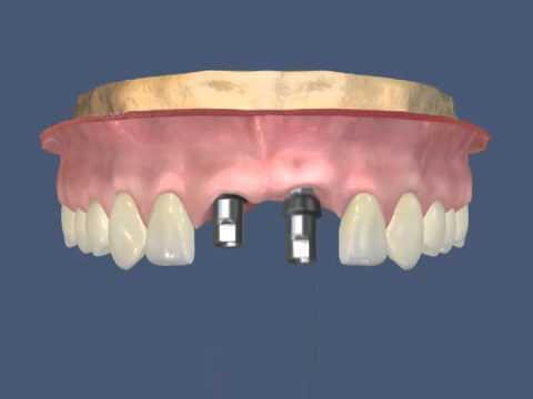 Имплантация передних зубов -  Два имплантата верхние центральные резцы Краснодар ДокторСтом