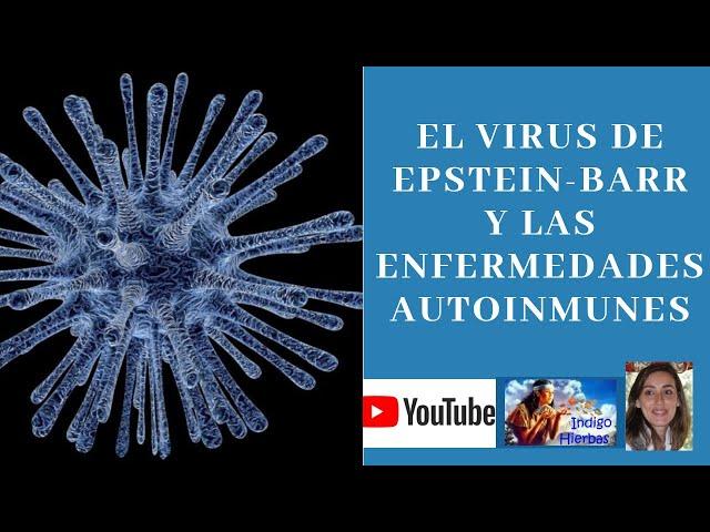 Virus de Epstein Barr y Enfermedades Autoinmunes