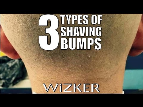 Ps From Shaving Types Causes Cures