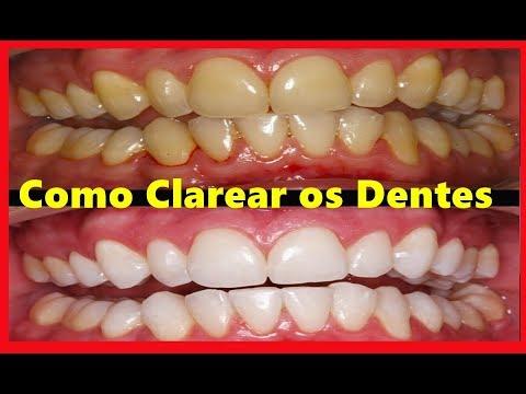 Como Clarear Os Dentes Em Casa 3 Jeitos Simples De Clarear Dentes