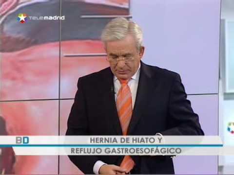 Acupuntura en gastritis y hernia hiatal funnydog tv - Alimentos prohibidos para la hernia de hiato ...