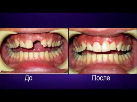 Какие есть виды протезирования зубов