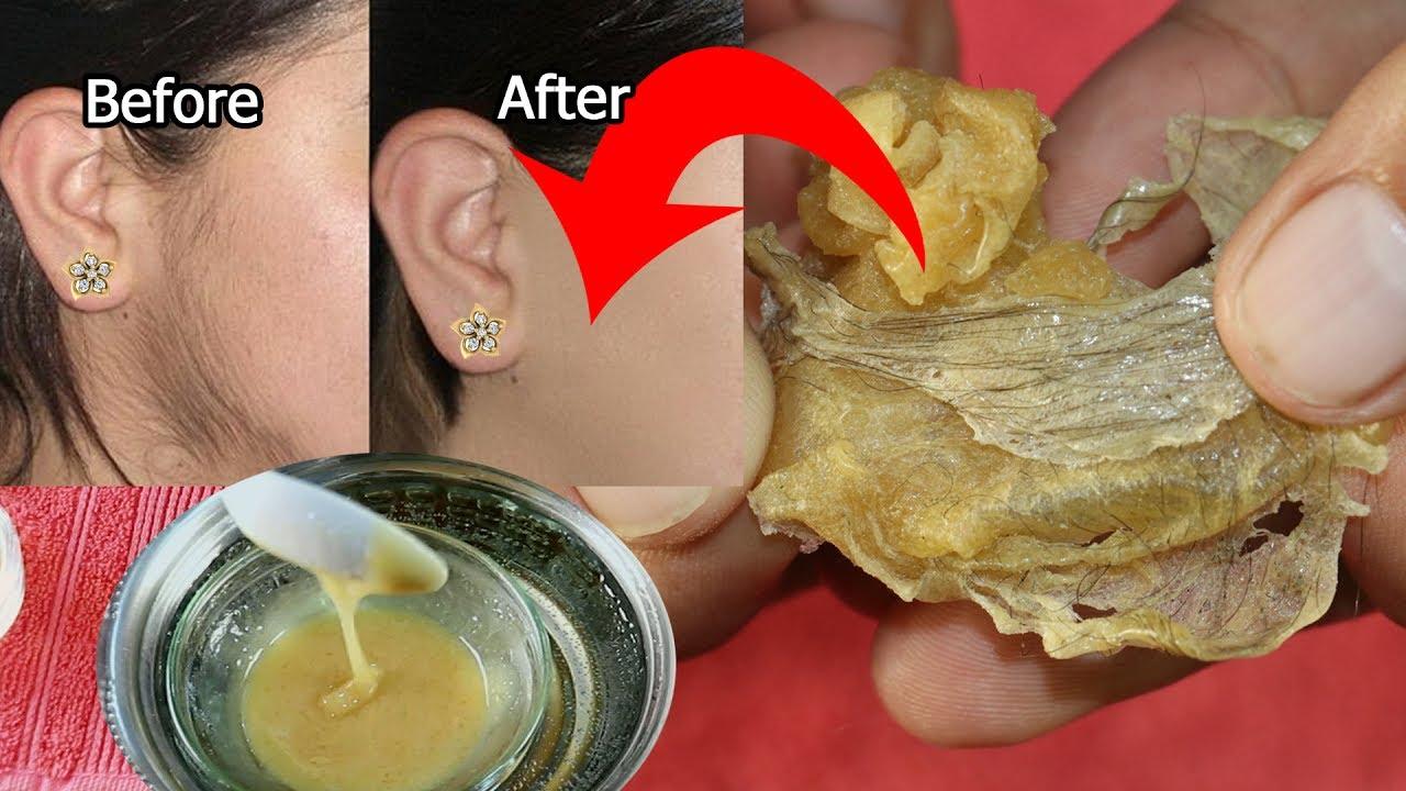 Download अनचाहे बालो को हमेशा के लिए हटाने का उपाय LIVE RESULT-100% सुरक्षित-remove hair permanently